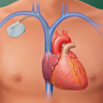 Pacemaker-&-Defibrillator-Monitoring in Long Island