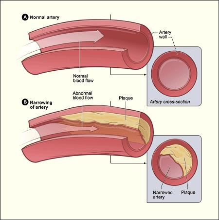 pic-cad Coronary Artery Disease