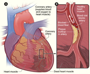 Coronary Arty Disease can cause a heart attack
