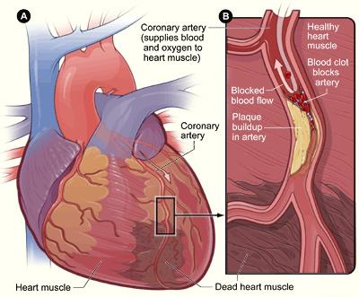 pic-cad1 Coronary Artery Disease
