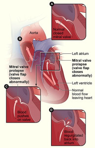 mitral-valve-prolapse