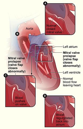 pic-mitral-valve-prolapse Mitral Valve Prolapse