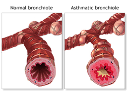Normal and Asthmatic Bronchiole