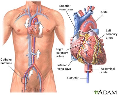 cardiac-catheterization Cardiac Catheterization