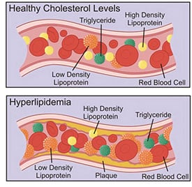 hyperlipidemia What is Hyperlipidemia?