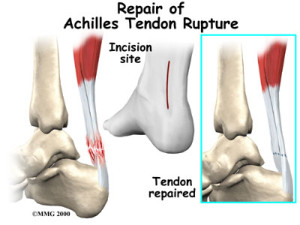 Achilles Tendon Repair Treatment