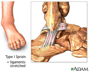 ankle-sprain-type-1-300x240 Podiatrist