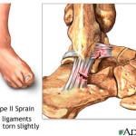 Ankle Sprain Type 2