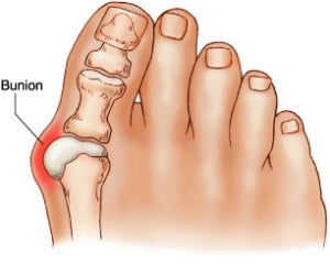Podiatrist near you treating Bunions