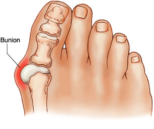 bunion Podiatrist