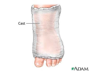 Podaitrist Treatment of Clubfoot Cast
