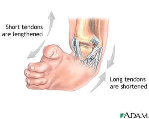 Podaitrist Treatment of Clubfoot Tendons