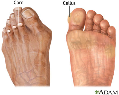 corn-callus Podiatrist