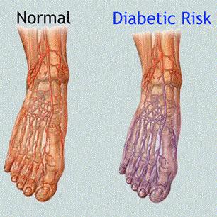diabetic-peripheral-neuropathy