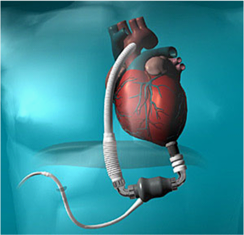 9116 What is LVAD?