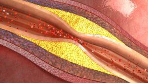 AdobeStock_121921317-300x169 Peripheral Vascular Disease