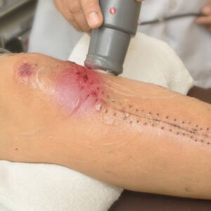 Ultrasound wound care