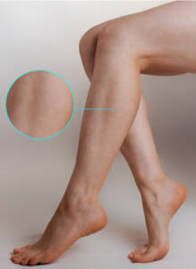 Treated Varicose Veins